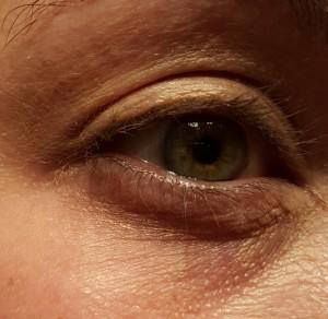 eyebefore