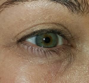 eyewrinklesafter
