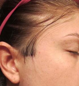 1 Body Hair Skin and Nails 6