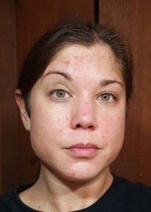 70% glycolic peel 3 3rd day