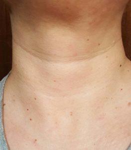 Bionova neck before 3