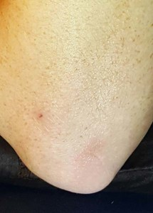 Derma e elbow after