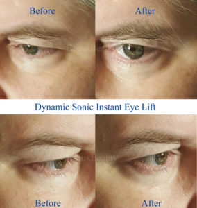 Dynamic Sonic Instant Eye Lift Before and After